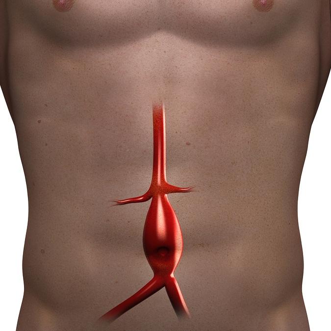 El aneurisma aórtico abdominal – ¿quiénes están en riesgo?