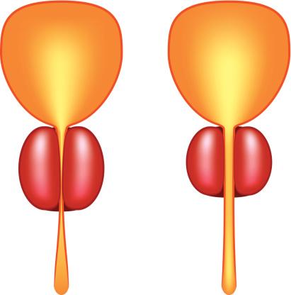 Una terapia nueva para el agrandamiento de la próstata