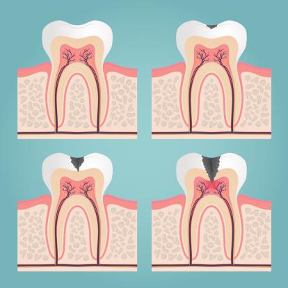 ¿Qué es la caries dental?