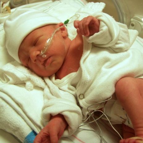 El parto prematuro podría estar relacionado al nivel de ciertas bacterias
