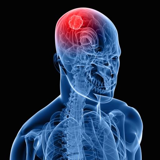 Cáncer cerebral: ¿qué es y cómo se identifica?