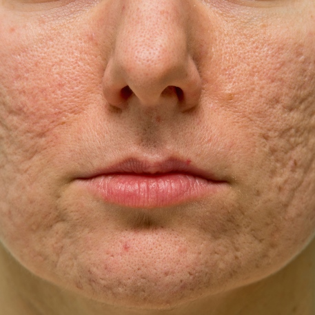 Cicatrices de acné: la huella de la adolescencia