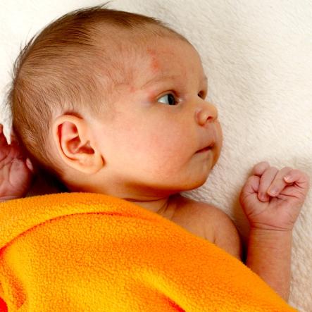 Cuando tu bebé tiene eczema