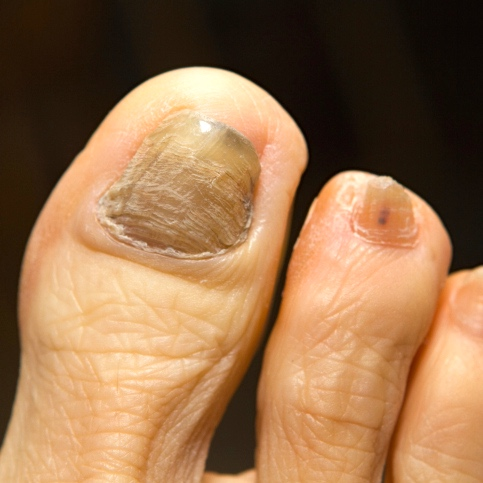 La quimioterapia: Cómo contrarrestar sus efectos en las uñas y la piel