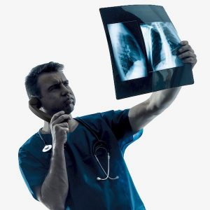 nódulos pulmonares