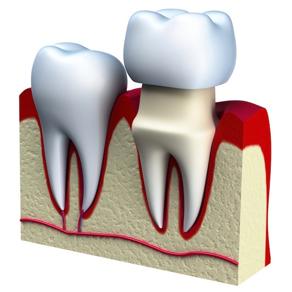 ¿Qué es una corona dental?