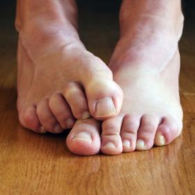 ¿Mala circulación en las piernas? Presta atención a tus factores de riesgo
