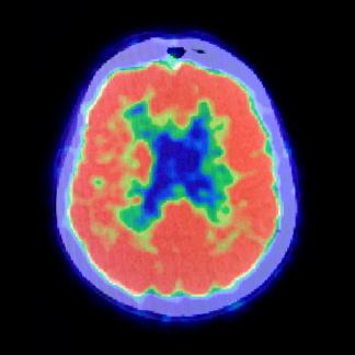 ¿Psicoterapia o medicamentos para la depresión? Un escáner del cerebro tiene la respuesta