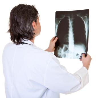 ¿Por qué desarrollan cáncer del pulmón las personas que no fuman?