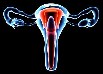 Nuevo medicamento contra los fibromas uterinos
