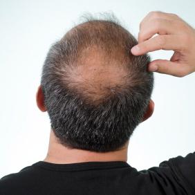 Hombres: ¿Hay relación entre la calvicie y la salud cardíaca?