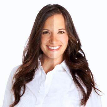 Alternativas para la renovación de la piel que alisan las arrugas faciales