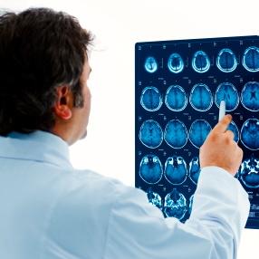 Más tomografías cerebrales en niños podrían significar más riesgo de cáncer en adultos