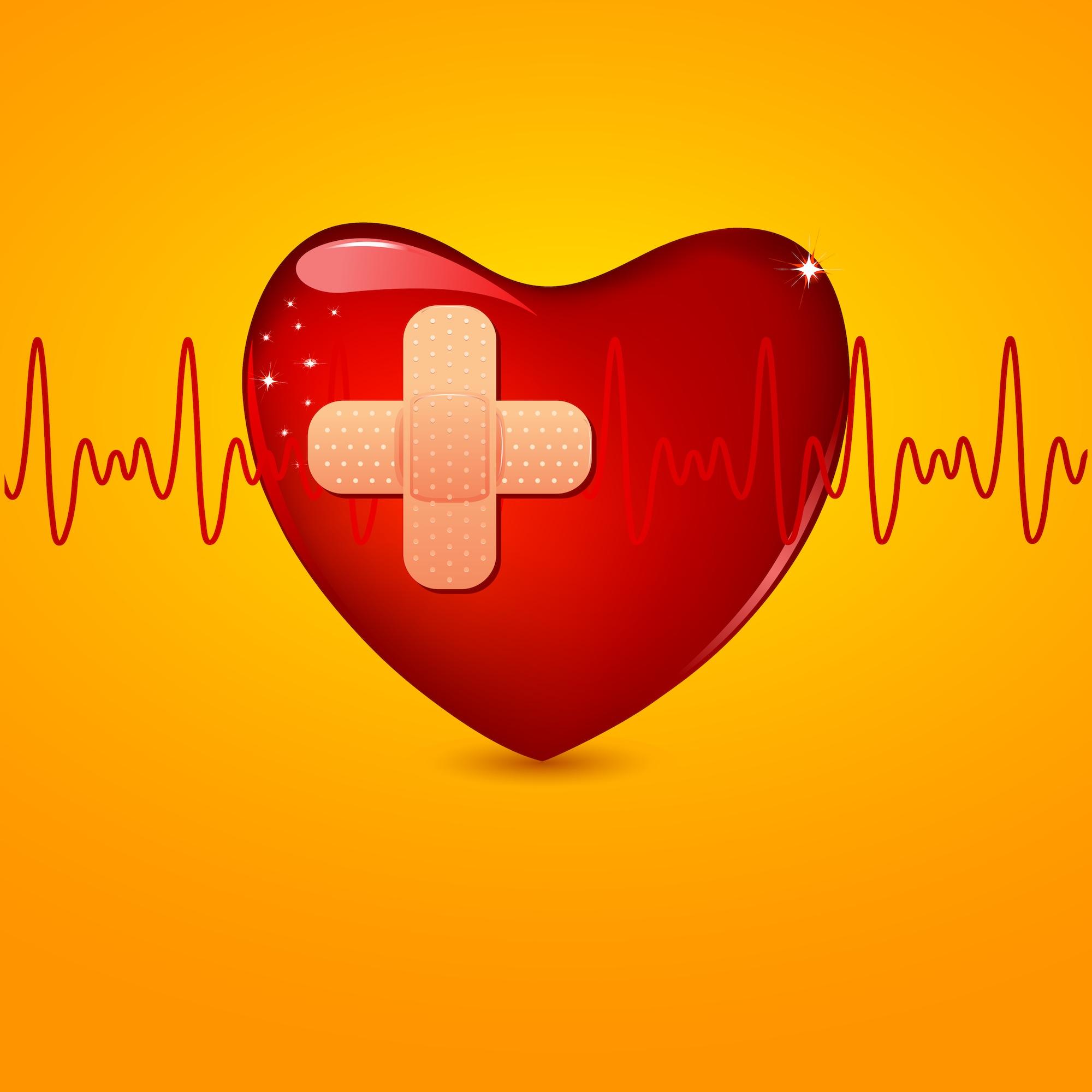 Lo que debes saber sobre la cirugía de revascularización coronaria (o de bypass con injerto)