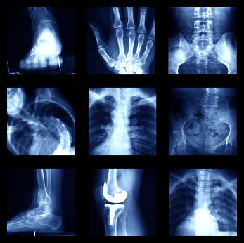 La osteoartritis y usted