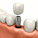 <!--:ES-->Los implantes dentales, ¿son la mejor alternativa?<!--:-->