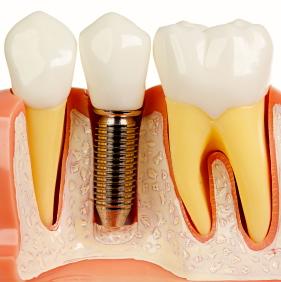 Nuevos implantes dentales al alcance de más pacientes