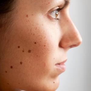 Nuxe el suero de las manchas de pigmento