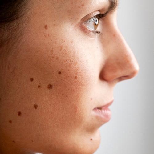 Las manchas negras con la peladura en la piel