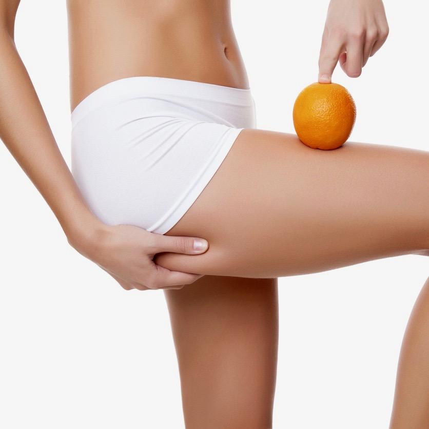 """Celulitis o """"piel de naranja"""" – ¿Qué es y cómo eliminarla?"""