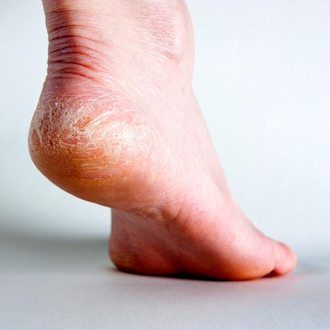 La diabetes y el cuidado de la piel