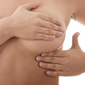 senos fibroquísticos