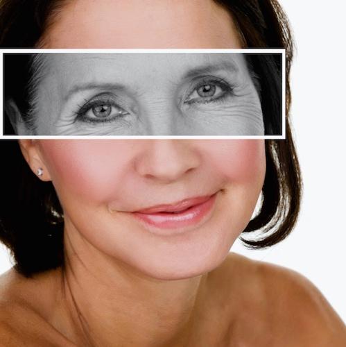 ¿Qué es y para qué sirve el Botox?