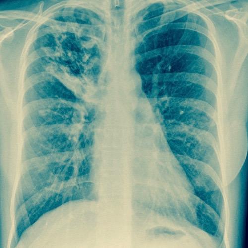 La tuberculosis: un problema de salud serio