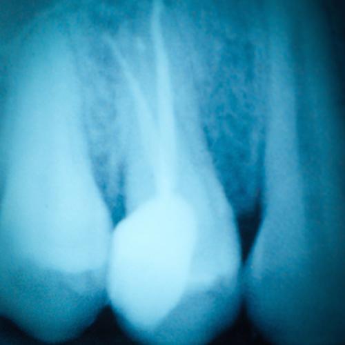 Endodoncia o tratamiento de conductos: ¡la salvación para tu sonrisa!