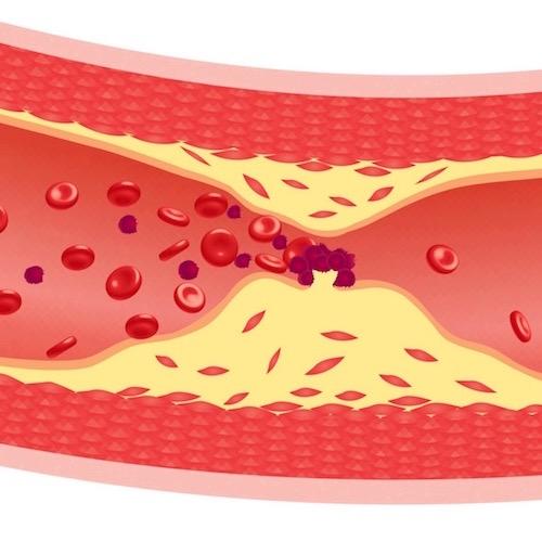 Hablando claro sobre la arterioesclerosis y la ateroesclerosis