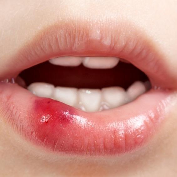 Estomatitis: tipos, causas y tratamiento de estas lesiones en la boca