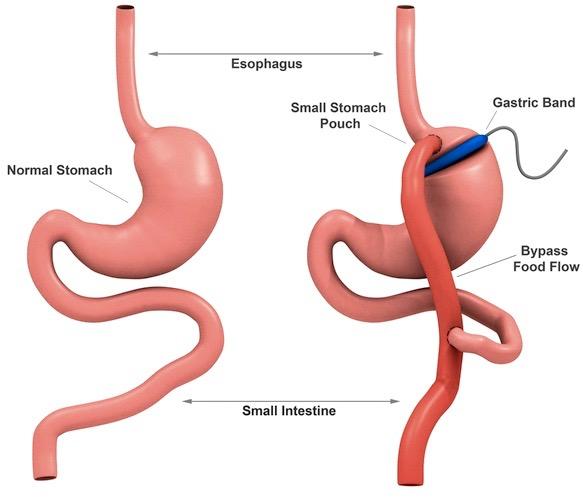 La cirugía bariátrica es más efectiva que la dieta contra la diabetes tipo 2