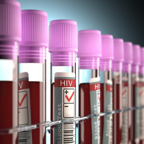 Algunos mitos sobre el VIH