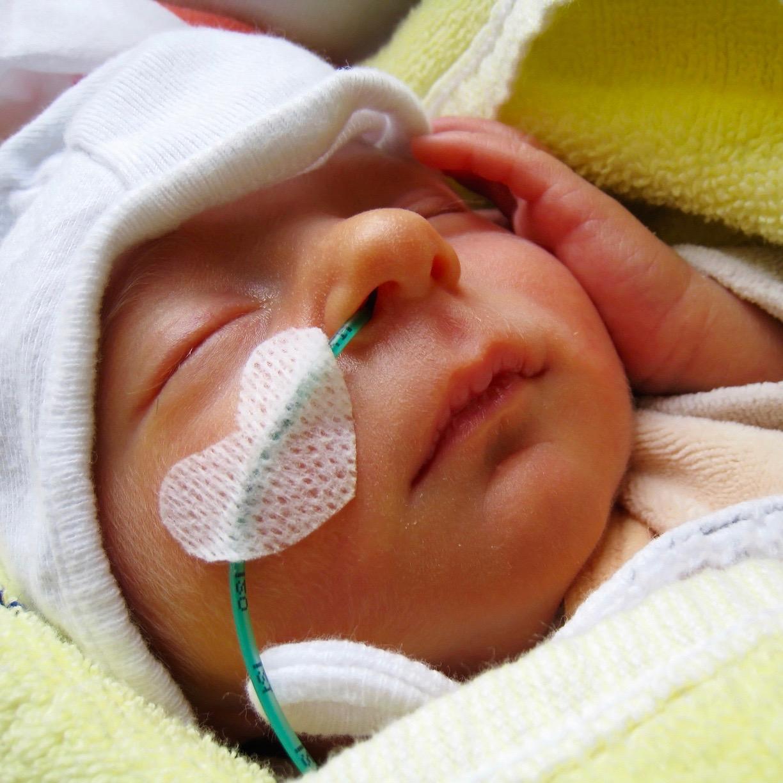 Lo que necesitas saber sobre los defectos de nacimiento (las malformaciones congénitas)