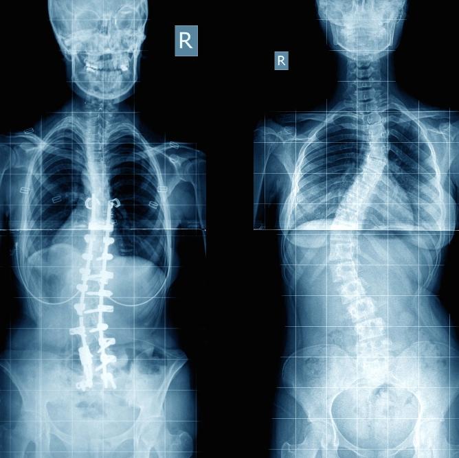 Escoliosis en los adultos mayores: la osteoporosis es un factor de riesgo
