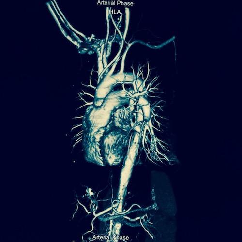 Angiografía coronaria: un viaje por las arterias de tu corazón