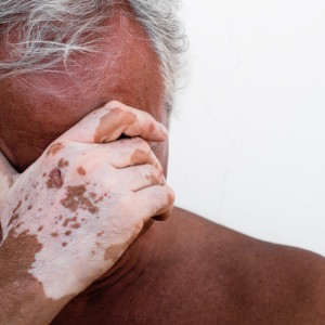 Desperate man affected by vitiligo