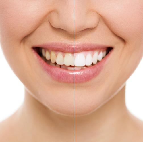 5 bebidas que manchan los dientes