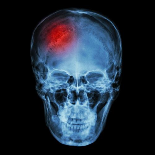 SOS en tu cerebro: Señales de alerta de una apoplejía o derrame cerebral