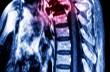 cáncer en la espina dorsal