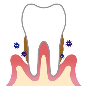 Dental Plaque by yomogi1